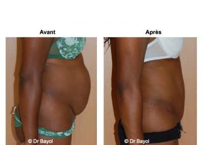 chirurgie esthétique du ventre Lyon