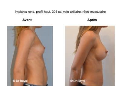 chirurgie esthétique implants mammaires Lyon