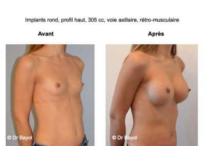 chirurgie esthétique prothèses mammaires Lyon