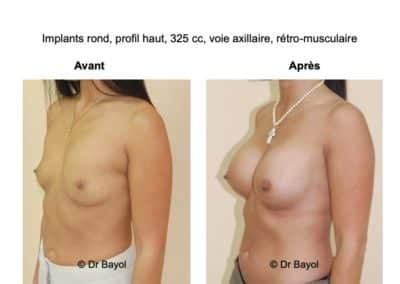 chirurgie esthetique poitrine Lyon