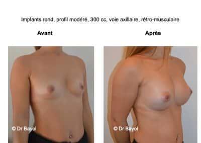 chirurgie mammaire Lyon