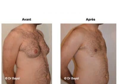 cure de gynécomastie Lyon