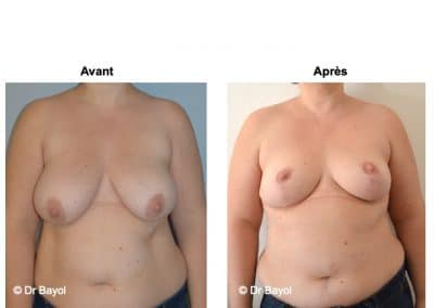 cure de ptose mammaire Aix-les-Bains