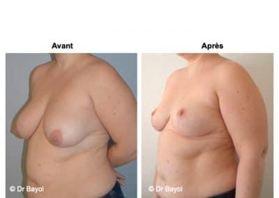cure de ptose mammaire Annecy