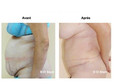 dermolipectomie abdominale Aix-les-Bains