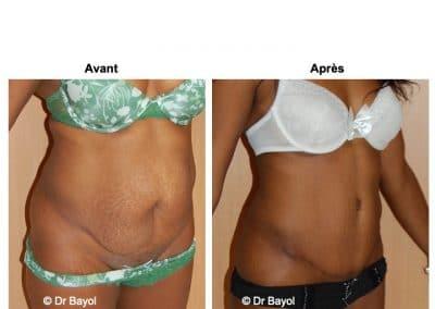 dermolipectomie abdominale Lyon