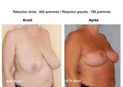 hypertrophie mammaire Annecy