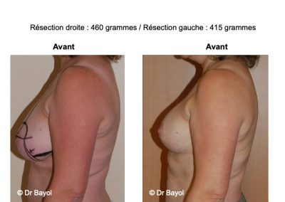 hypertrophie mammaire Lyon