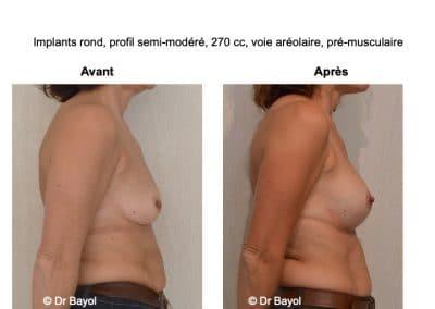 implants mammaires à Lyon