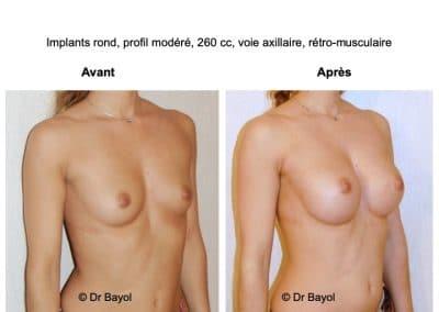 implants mammaires Aix-les-Bains