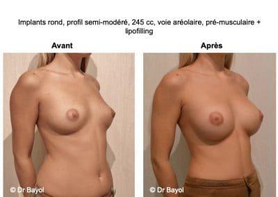 implants mammaires Lyon