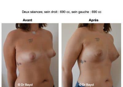 injection de graisse dans les seins Aix-les-Bains
