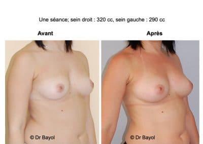 injection de graisse dans les seins Annecy