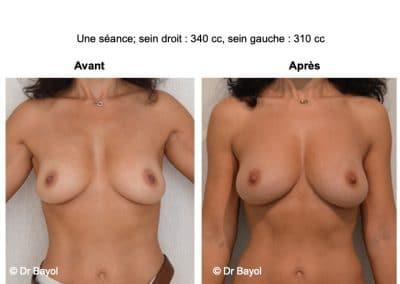 injection de graisse dans les seins Lyon