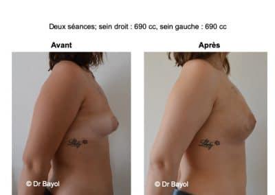 injection de graisse seins Aix-les-Bains