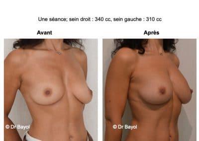 injection de graisse seins Lyon