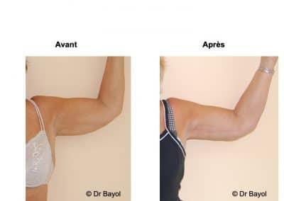 lifting des bras Lyon