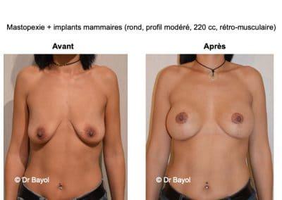 lifting des seins Aix-les-Bains