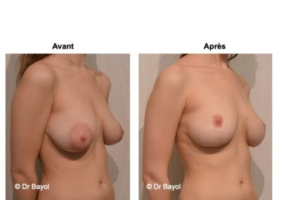 lifting mammaire Lyon