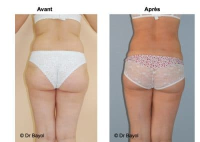 lipoaspiration douce Annecy