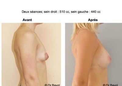 lipofilling des seins Aix-les-Bains