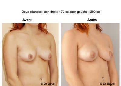 lipofilling des seins Annecy