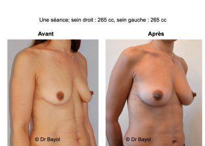 lipofilling seins Aix-les-Bains