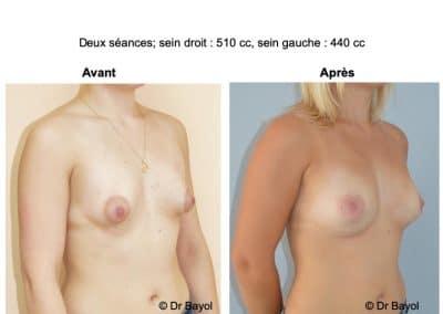 lipostructure des seins Aix-les-Bains