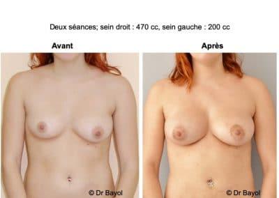 lipostructure des seins Annecy