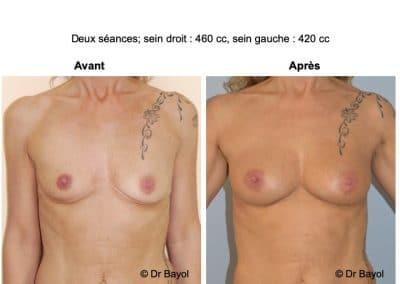 lipostructure des seins Lyon