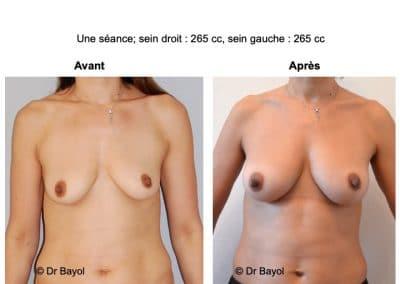 lipostructure seins Aix-les-Bains