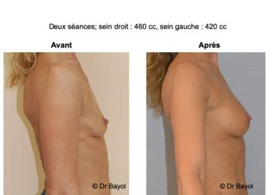 lipostructure seins Lyon