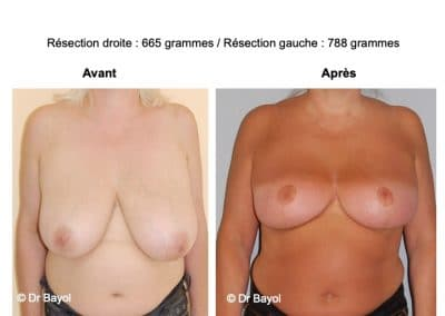 mammoplastie