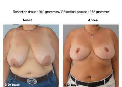 mammoplastie Aix-les-Bains