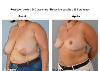mammoplastie Annecy
