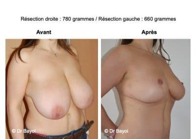 mammoplastie Lyon