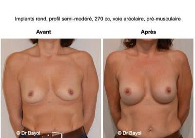 mammoplastie d'augmentation Lyon