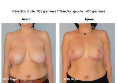 mammoplastie de réduction Aix-les-Bains
