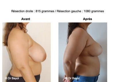 mammoplastie de réduction Annecy