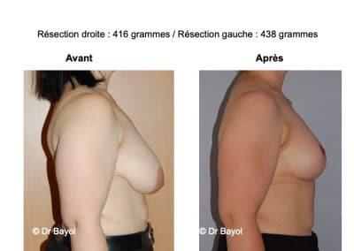 mammoplastie de réduction Lyon