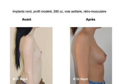 meilleur chirurgien augmentation mammaire Aix-les-Bains
