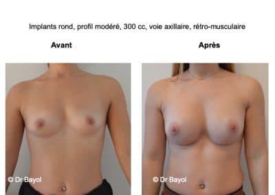 meilleur chirurgien augmentation mammaire Annecy
