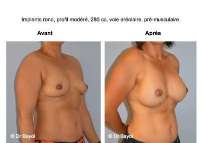 meilleur chirurgien augmentation mammaire Lyon