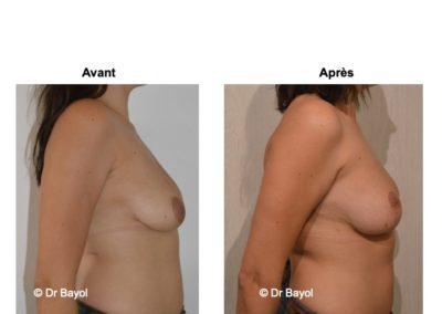 meilleur chirurgien cure de ptose mammaire Lyon