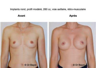 meilleur chirurgien esthétique des seins Lyon