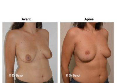 meilleur chirurgien lifting des seins Lyon