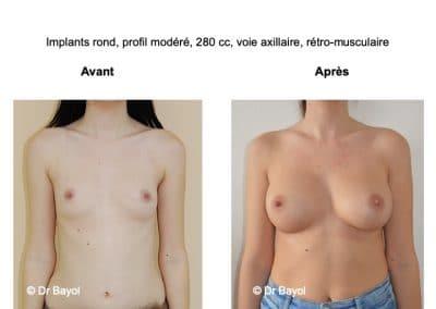 meilleur chirurgien prothèses mammaires Aix-les-Bains