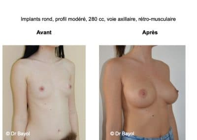 meilleur chirurgien prothèses mammaires Annecy