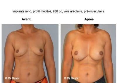 meilleur chirurgien prothèses mammaires Lyon
