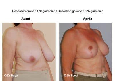meilleur chirurgien réduction mammaire Lyon